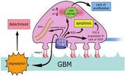 Membranous nephropathy