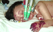 Meningococcal Disease