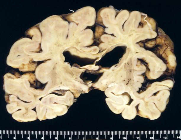 Metachromatic leukodystrophy