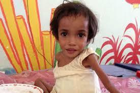 Micronutrient Malnutrition