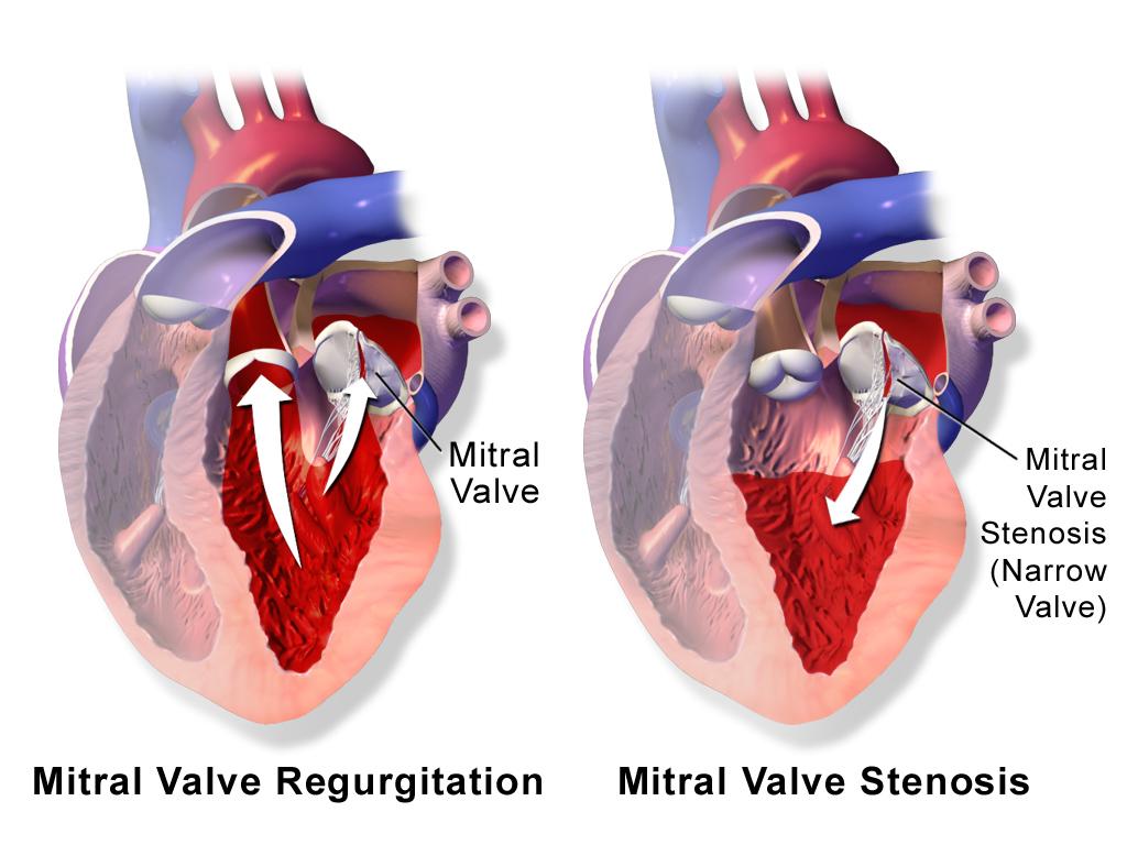 Mitral valve regurgitation   Brazil  PDF   PPT  Case Reports ...