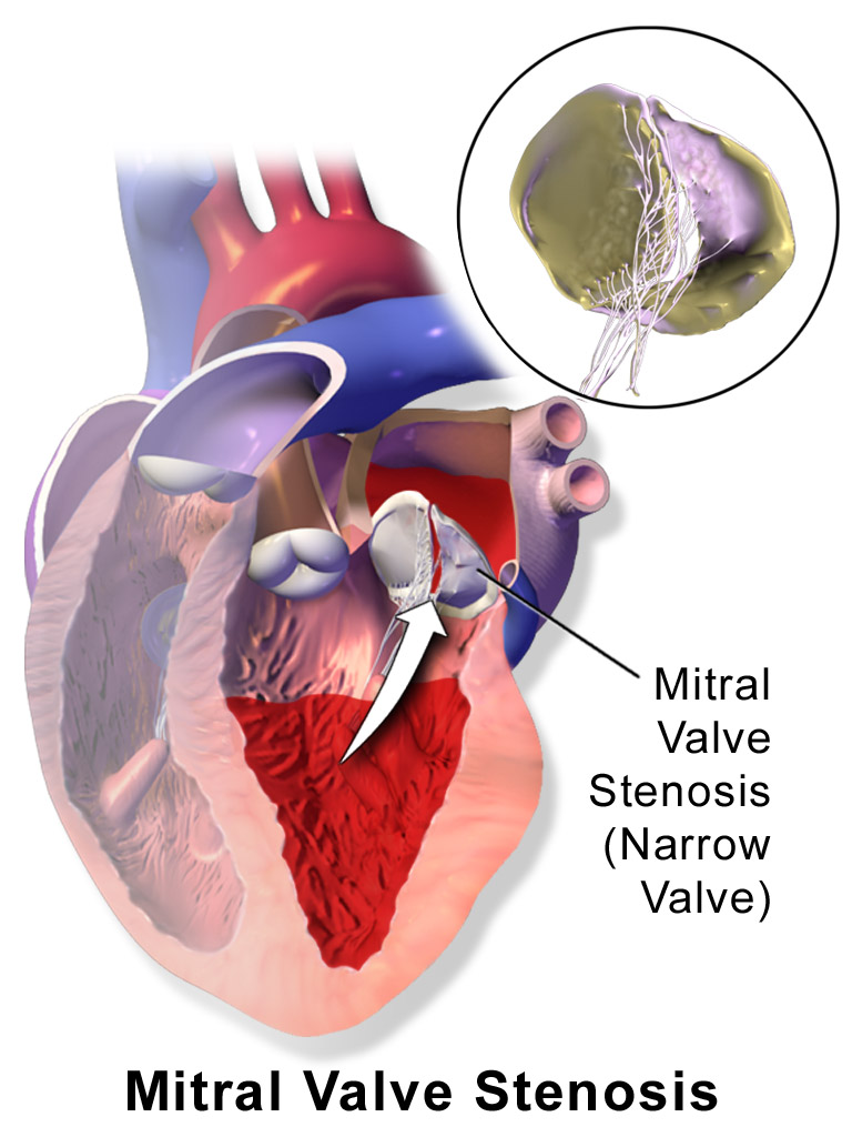 Mitral valve stenosis | Mexico | PDF | PPT| Case Reports ...