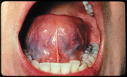 Mouth cancer
