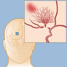 Moyamoya disease