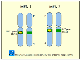 Multiple Endocrine Neoplasia(MEN-1)