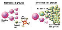 Multiple myeloma