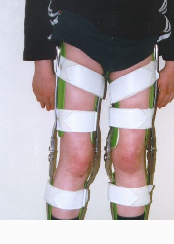 Muscular dystrophy | Japan| PDF | PPT| Case Reports ...