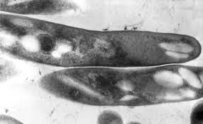 Mycobacterium abscessus infection