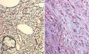Myelofibrosis