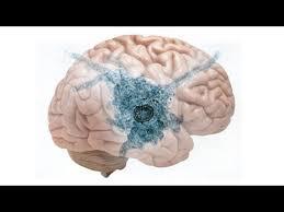 Naegleria infection