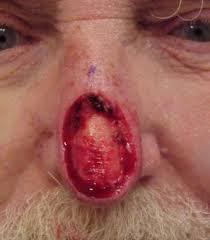 Nasal and paranasal tumors