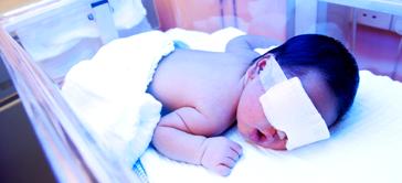 New born jaundice