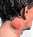 Non Hodgkins lymphoma