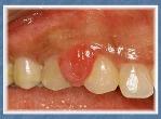 Odontogenic Lesions