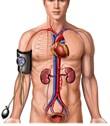 Orthostatic hypotension