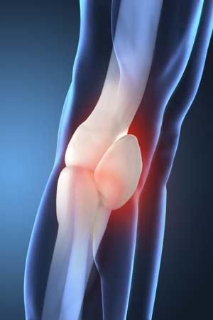 Pagets disease of Bone