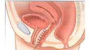 Pelvic organ prolapse
