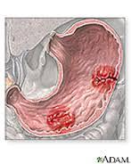 Peptic ulcer
