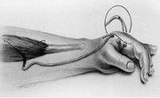 Peripheral Nerve Tumors