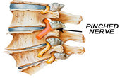 Pinched Nerve