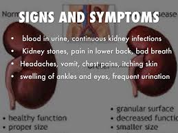 Polycystic Kidney Disease Singapore Pdf Ppt Case Reports Symptoms Treatment