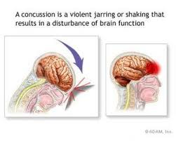 Post-concussion syndrome