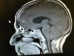 Posterior Cortical Atrophy