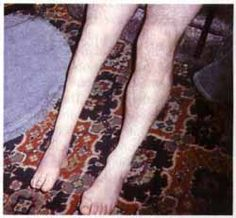 Post-polio syndrome