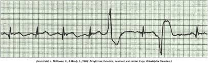 Premature ventricular contractions