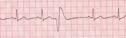 premature ventricular contractions australia pdf ppt case