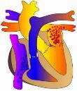 Pulmonary valve disease