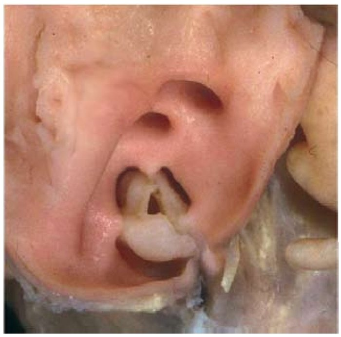 Pulmonary valve stenosis