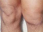 Reactive Arthritis