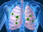Respiratory Syncytial Virus Infection