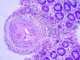 Schistosomiasis