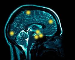 Schizoid personality disorder