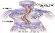 Scoliosis