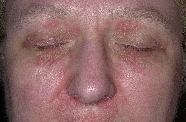 Федеральные рекомендации лечения атопического дерматита