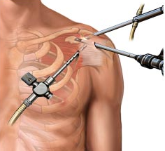 shoulder symptom modification procedure pdf