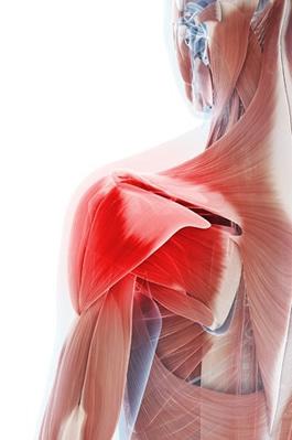 Separated Shoulder