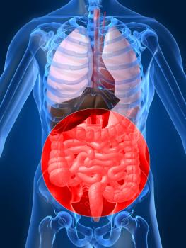 Short bowel syndrome