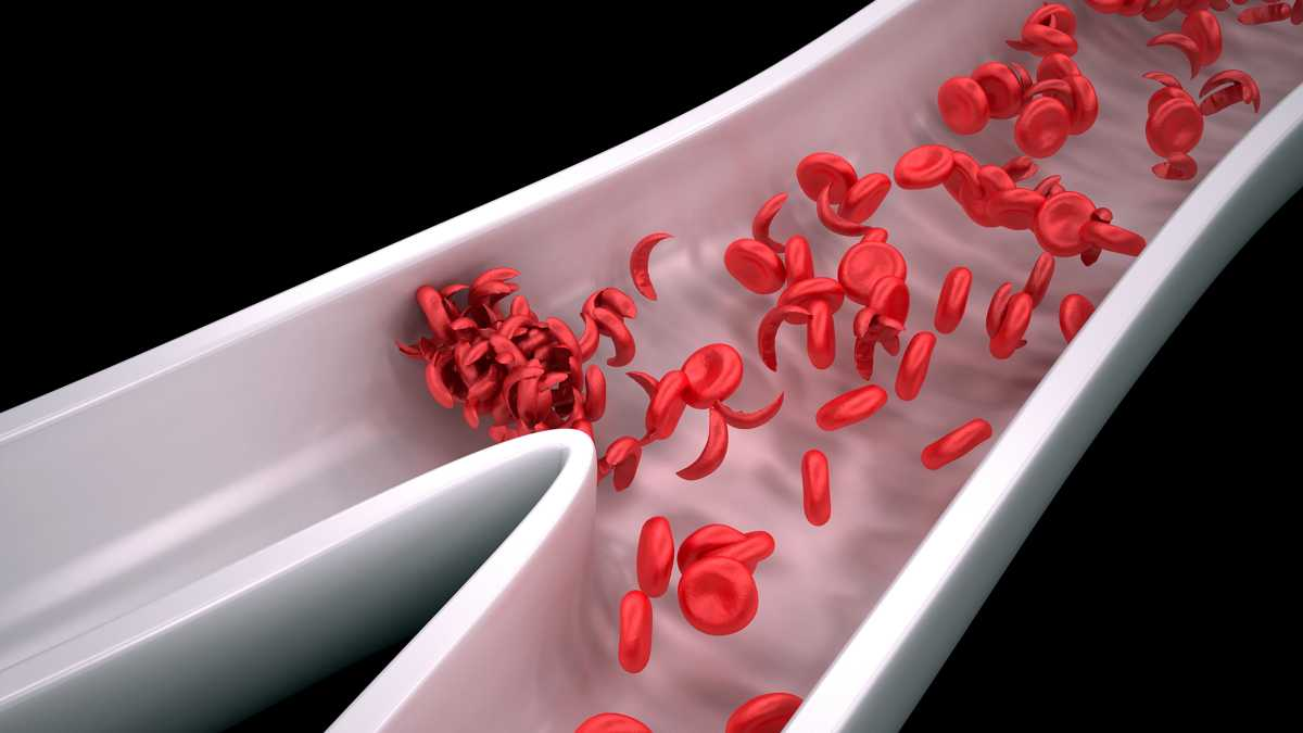 a brief description of sickle cell The role of blood rheology in sickle cell disease  after a brief description of basic hemorheology,.