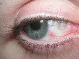 Sjogrens syndrome