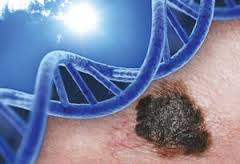 Skin Cancer and Genetics