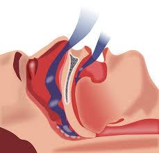 Sleep apnea Central