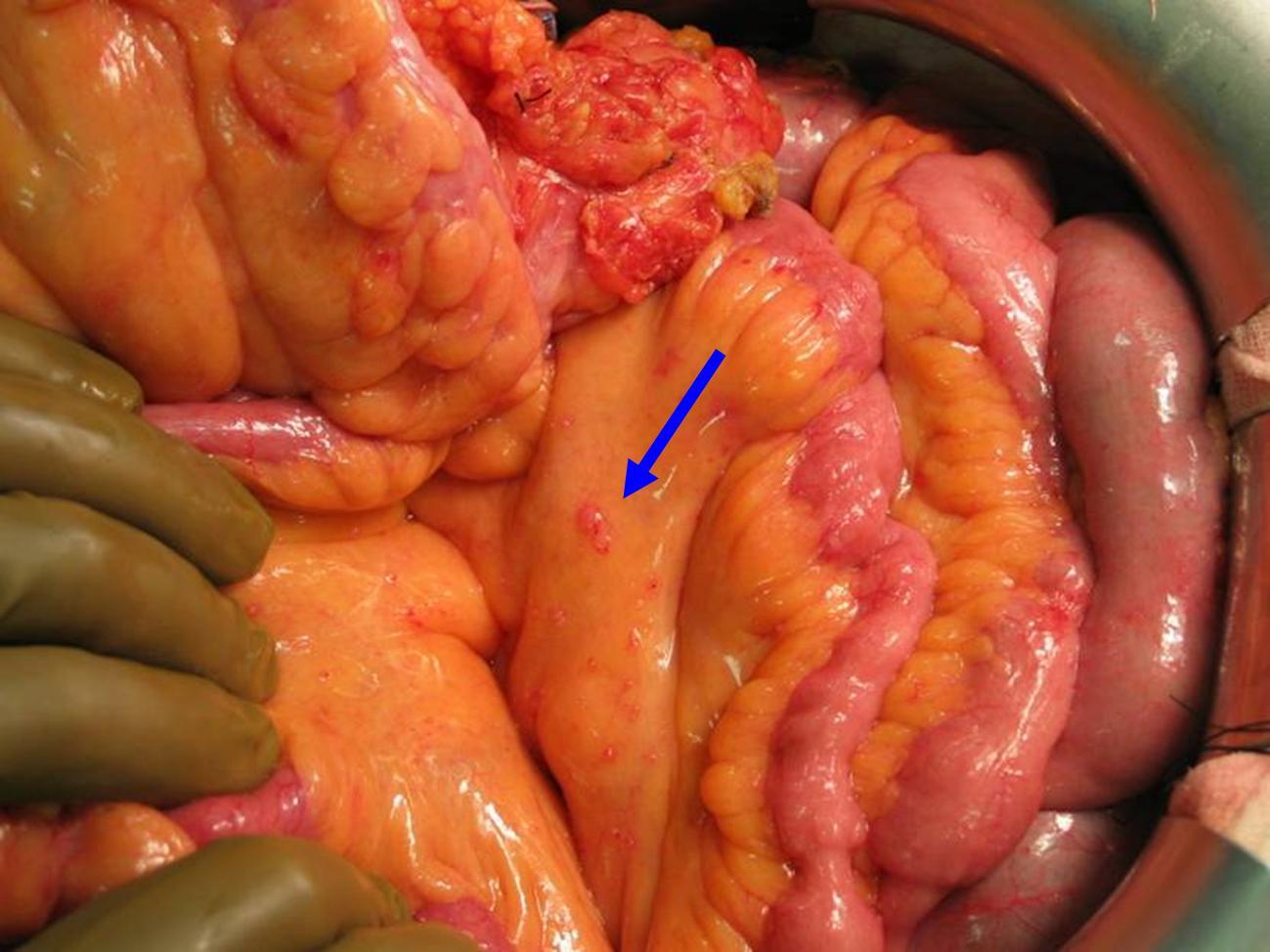 pancreascarcinoom metastasen