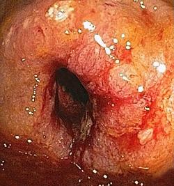 Small bowel cancer