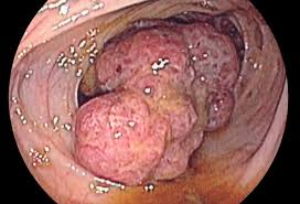 Small bowel cancer