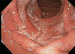 Small bowel prolapse