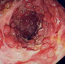 Small bowel prolapse